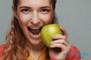 ¿Necesitas ortodoncia? Tipos de tratamientos