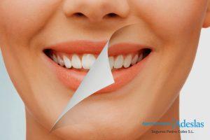 Blanqueamiento dental precio